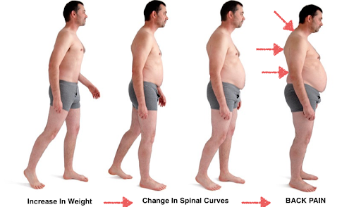 Losing weight alleviates the pain