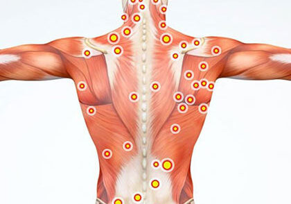 Trigger Point Injection for Pain Management