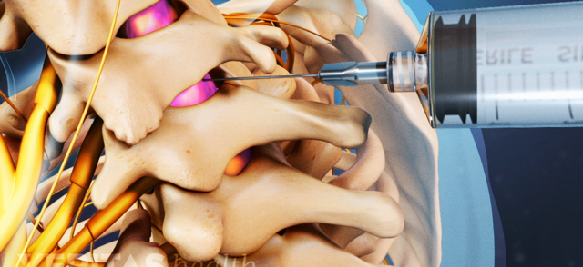 Lumbar Epidural Steroid Injections for Low Back Pain